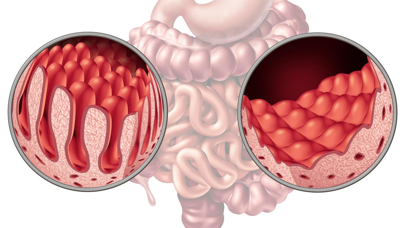 Links gesunde Darmzotten, rechts die abrasierten eines Zöliakie-Patienten