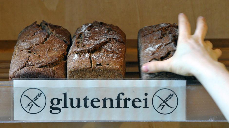 Sind laktose- und glutenfreie Lebensmittel gesünder?