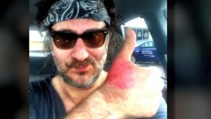 'Margarita-Dermitis': Adam Levy trug Brandblasen davon